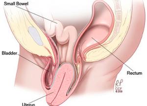 uterus prolapse
